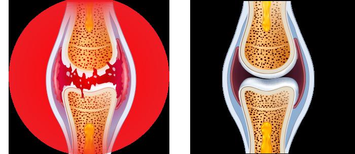 I 10 cibi per combattere l'artrosi